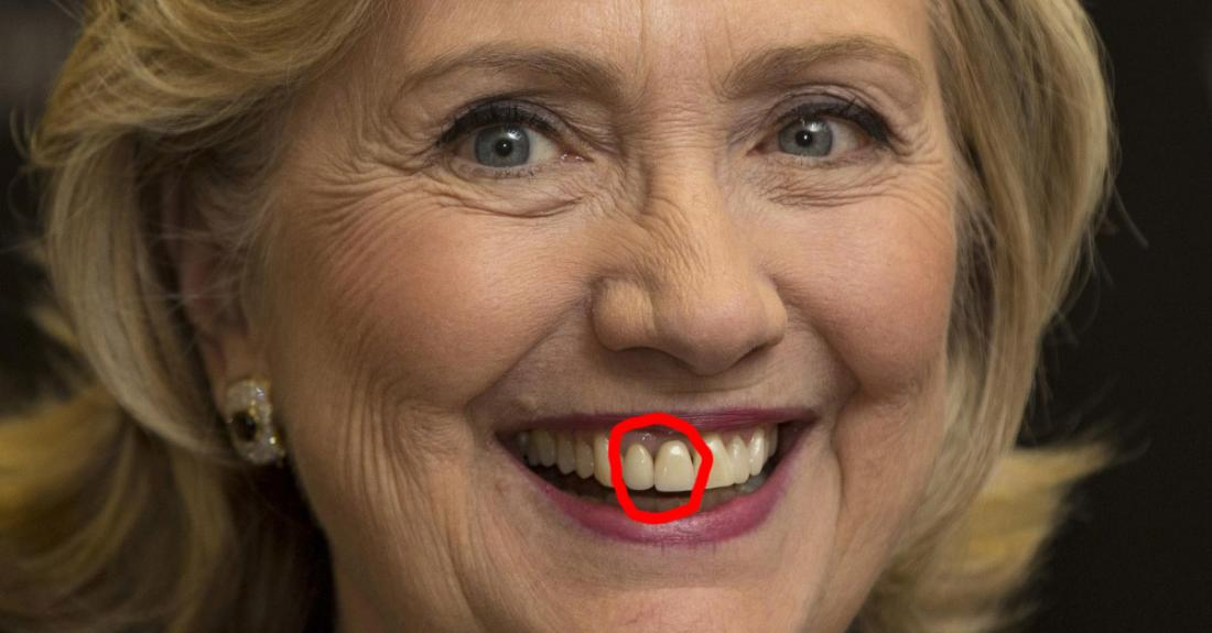 This Dentist Analyzed The Teeth Of The 2016 Presidential