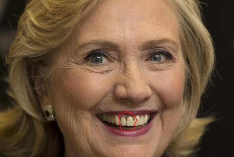Hillary Clinton Dental Analysis